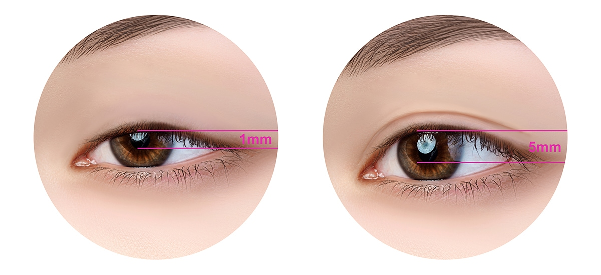 眼皮1.0