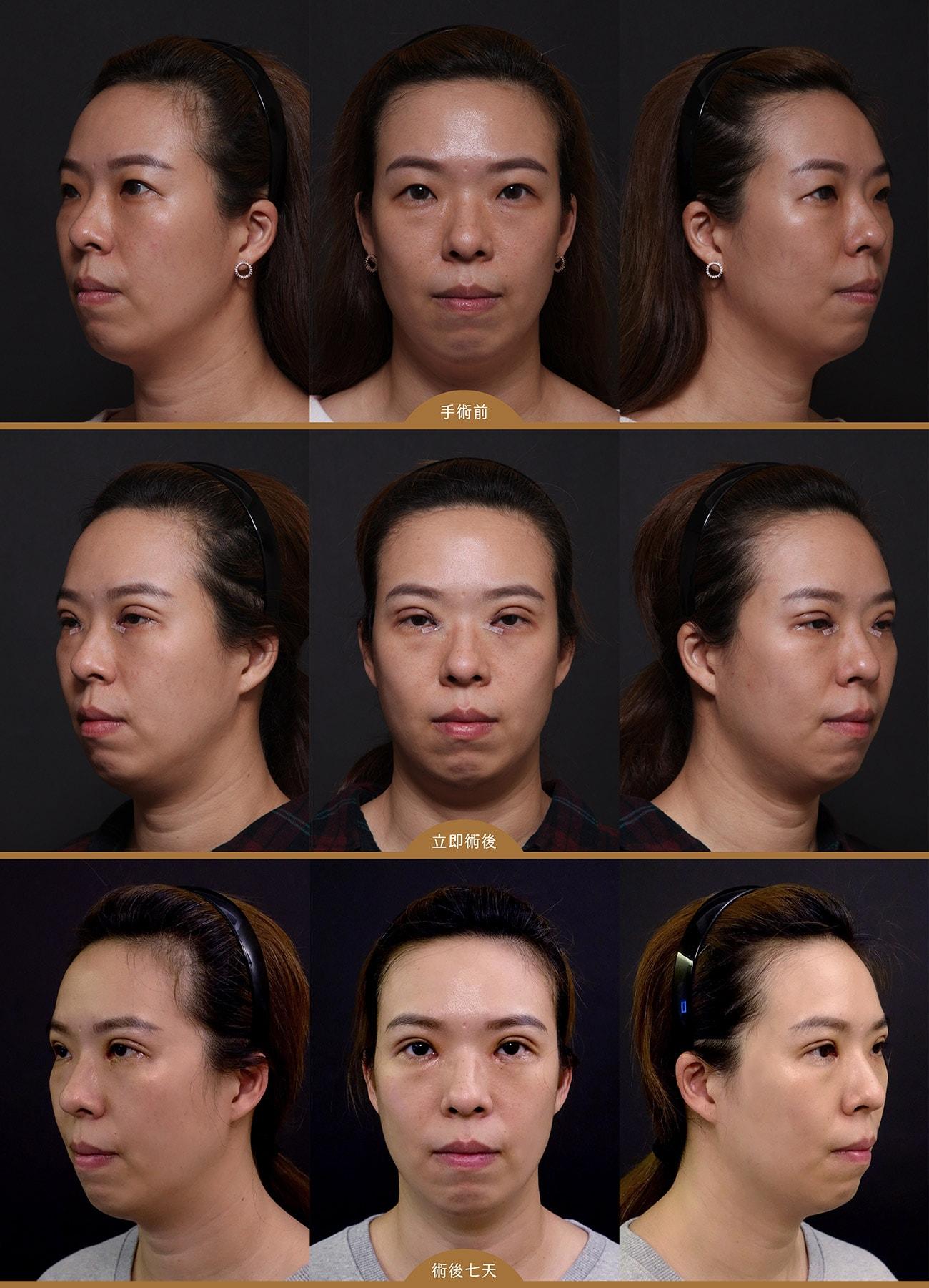 雙眼皮手術BA