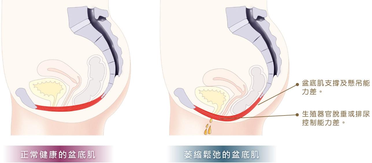 維持正常排便,若腸道缺乏盆底肌的支撐,易有便秘困擾。幫助懷孕分娩,盆底肌在懷孕期間為嬰兒提供支持並有助於分娩。